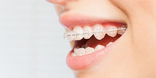 ceramic-braces-min