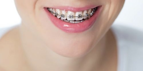 traditional-braces-min